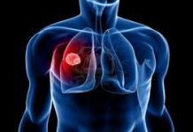 What are the symptoms of mesothelioma?