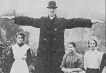 Fred The Giant died in 1918, aged 29.