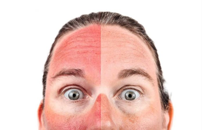 Does CBD Actually Cure Sunburns?