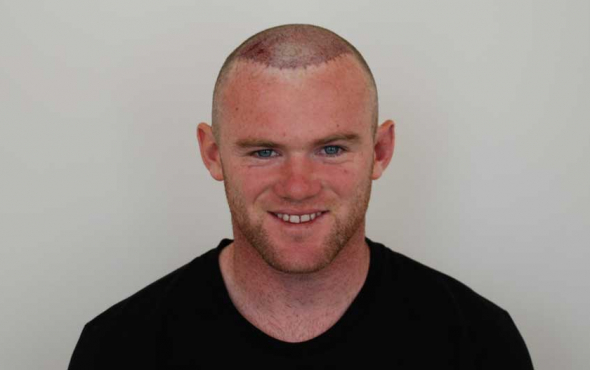 Wayne Rooney said that he was delighted with the result achieved by the Harley street hair clinic London