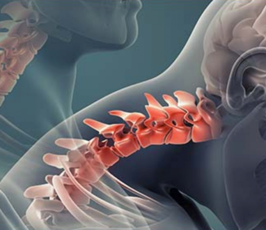 Whiplash: What to do when you suffer the most common accident injury