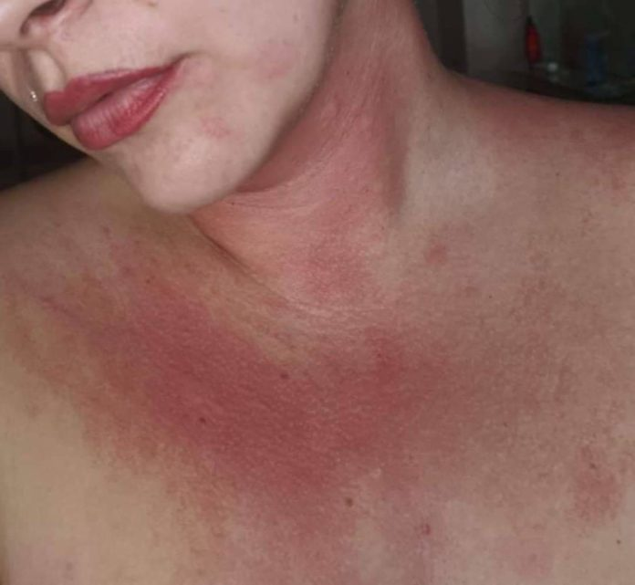 Jade Butlin: Painful and very itchy rash, from processionary caterpillars' hairs